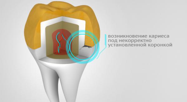 Зубная боль под коронкой чем снять в домашних условиях