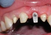 Причины отека после имплантации зуба