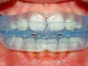 Действие ортодонтических трейнеров для зубов