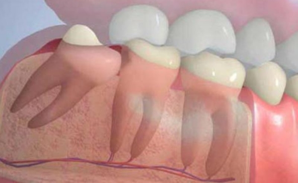 Пьезохирургия удаление зуба