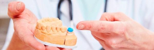 Почему сильно болит зуб под коронкой