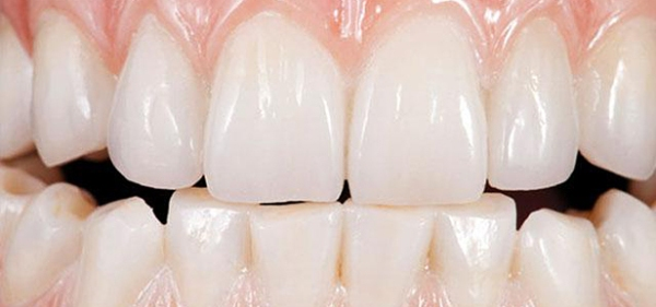 Плюсы и минусы зубных коронок Prettau