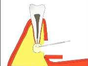После операции резекции верхушки корня зуба