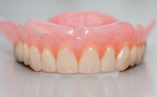 Изготовление силиконовых зубных протезов
