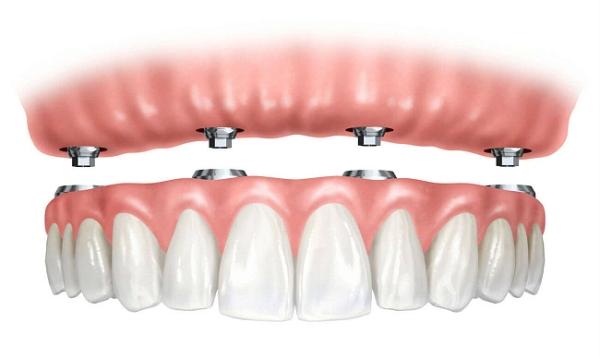 Показания к установке условно съемного протеза на опорных зубах