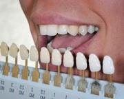 Цена выравнивания зубов винирами