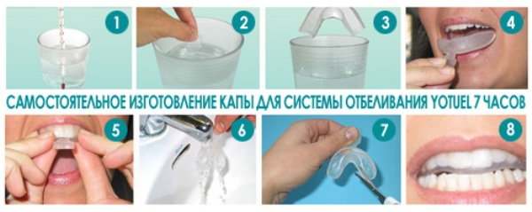 Отбеливание зубов в домашних условиях цены