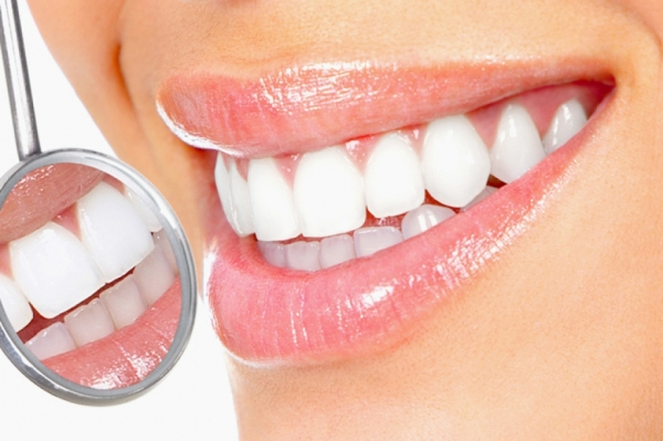 Разновидности методик отбеливания зубов Yotuel