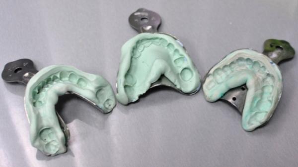 Клинические этапы изготовления съемных зубных протезов