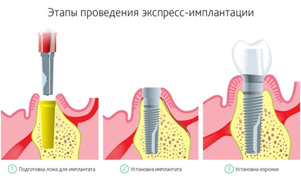 Экспресс имплантация зубов цены