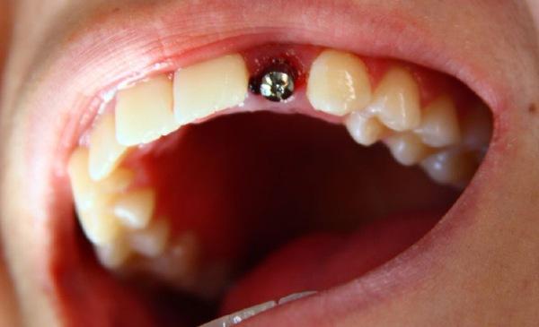 Экспресс имплантация зубов стоимость