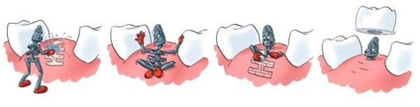 Имплантация зубов при пародонтозе