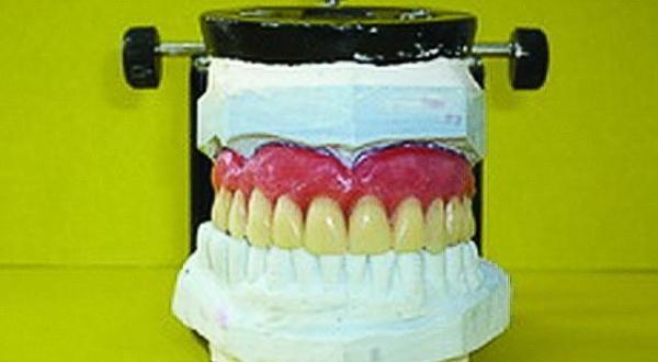 Как проводится изготовление съемных зубных протезов