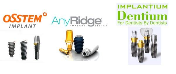 Какие импланты лучше ставить на передние зубы