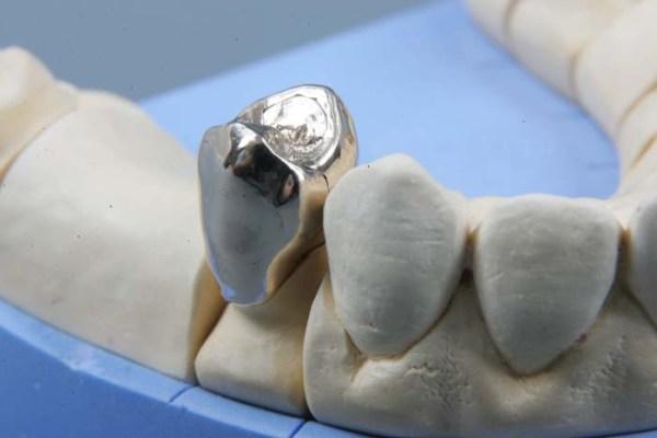 Показания к применению стальных коронок на зубы