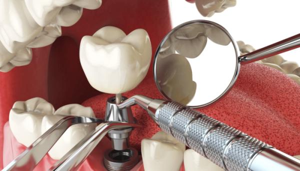 Какие импланты лучше ставить на жевательные зубы