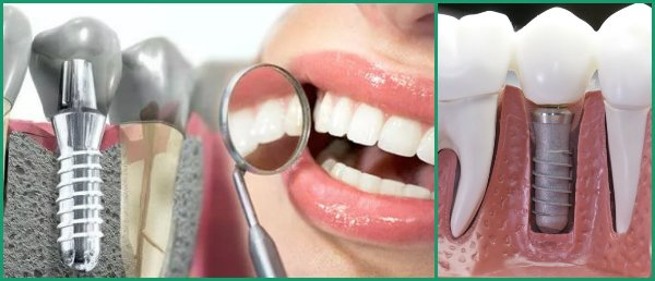 Возможные осложнения после однофазной имплантации зубов