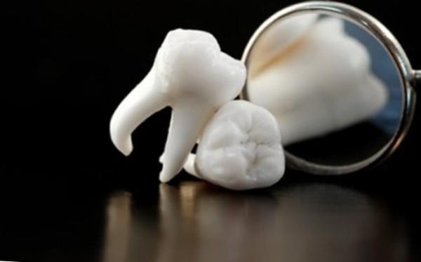 Возможные последствия сложного удаления зуба мудрости