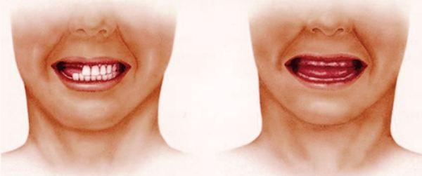 Срок изготовления съемных зубных протезов