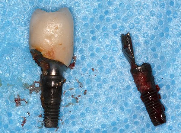 Причины отторжения импланта зуба и его удаление