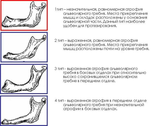 Классификация беззубых челюстей по курляндскому