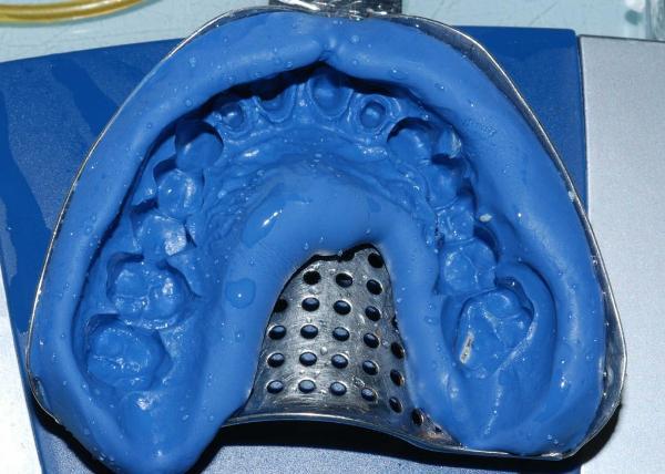 Силиконовые оттискные материалы в стоматологии
