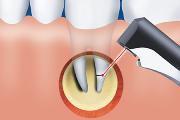 Проведение гемисекции зуба