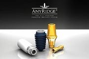 Особенности имплантов Anyridge