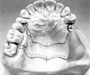Этапы изготовления бюгельного протеза