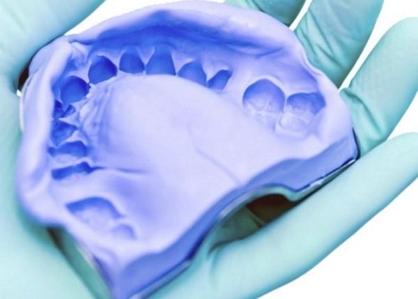 Как снимают слепок зубов для брекетов