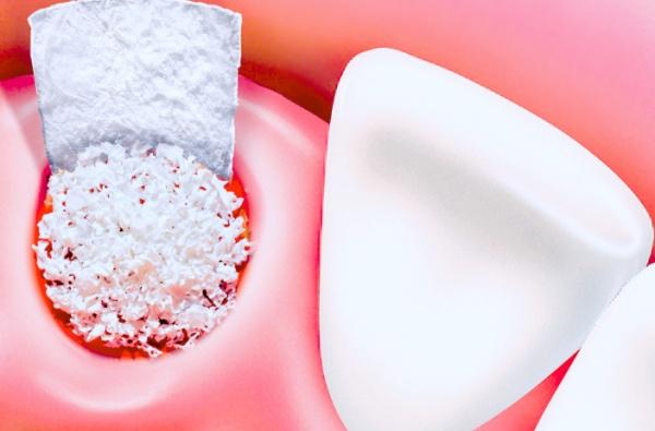 Костный материал в стоматологии