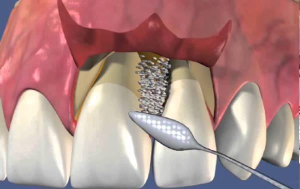 Методы выполнения лоскутной операции на десне