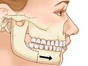 Коррекция маленькой нижней челюсти