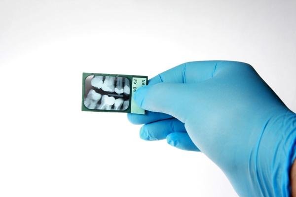 Операция цистэктомия зуба