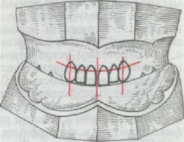 Определение центральной окклюзии и центрального соотношения челюстей