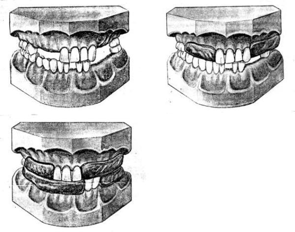 Определение центральной окклюзии при полном отсутствии зубов