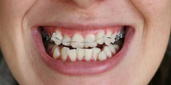 Действия ортодонта