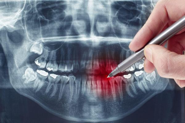 Особенности простого удаления зуба