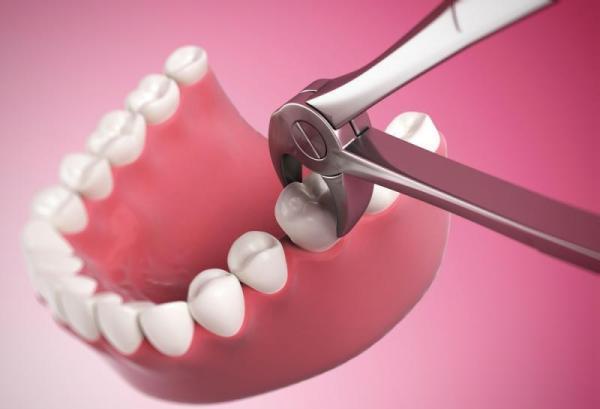 Последствия простого удаления зуба