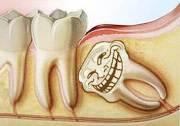 Стоимость сложного удаления зуба мудрости