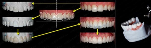 Локализованная форма повышенного стирания зубов