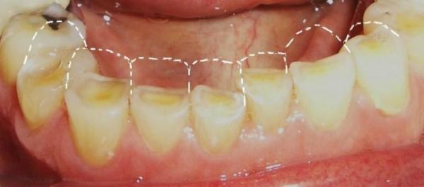 Диагностика и лечение патологического стирания зубов