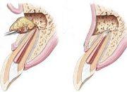 Операция цистэктомии зуба