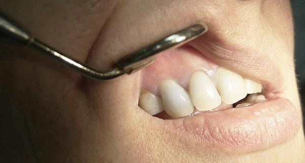 Цистотомия кисты зуба