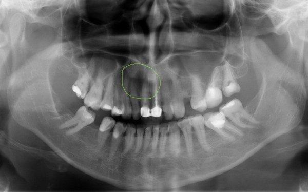 Киста зуба на панорамном снимке