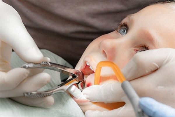 Удаление молочного зуба у ребенка цена