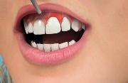 клиническое удлинение зуба
