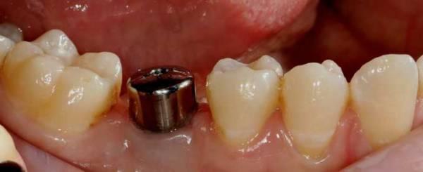 Абатмент прямой с уступом dentium