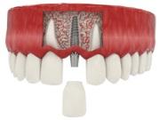 Цена экспресс имплантации зубов