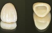 Фарфоровые коронки на зубы
